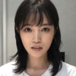 美山加恋のあごはしゃくれてる?子役時代と現在を画像で検証!